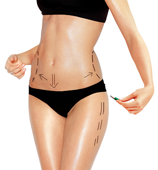 body contouring surgery abroad