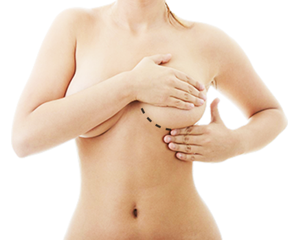 breast cosmetic surgery abroad