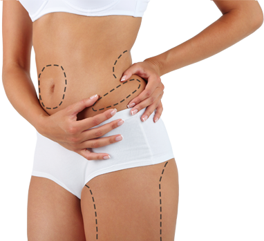 liposuction abroad