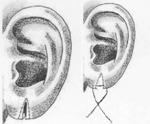 Surgery-split-or-torn-earlobes