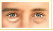lower eyelid surgery abroad