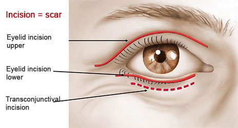 upper eyelid surgery tunisia
