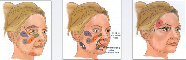 Facial-lipofilling-technique