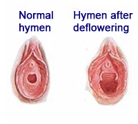 Before-after-hymen-deflowering