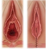Vaginoplasty-Result-Tunisia