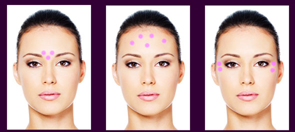 Other-areas-Botox-injections
