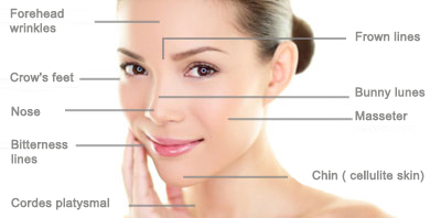 areas-Botox-injections