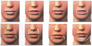Fillers-injections-Tunisia