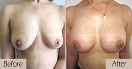 breast-augmentation-before-after-abroad-tunisia-patient4