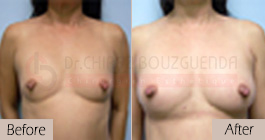 Breast-fat-transfer-before-after-abroad-tunisia-patient3