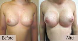 Breast-implants-before-after-abroad-tunisia-patient1