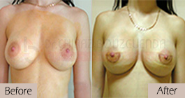 Breast-implants-before-after-abroad-tunisia-patient2