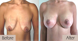 Breast lift-before-abroad-tunisia-patient1