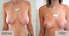 Breast lift-before-abroad-tunisia-patient2