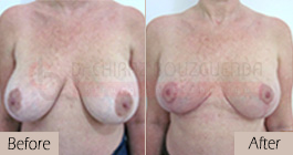 Breast lift-before-abroad-tunisia-patient3