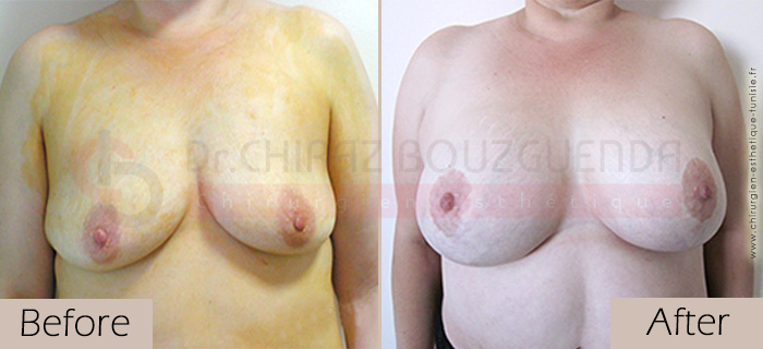 Breast lift-before-abroad-tunisia-patient6