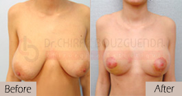 Breast-reduction-before-after-abroad-tunisia-patient2