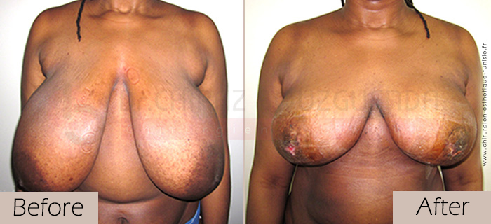 Breast-reduction-before-after-abroad-tunisia-patient3