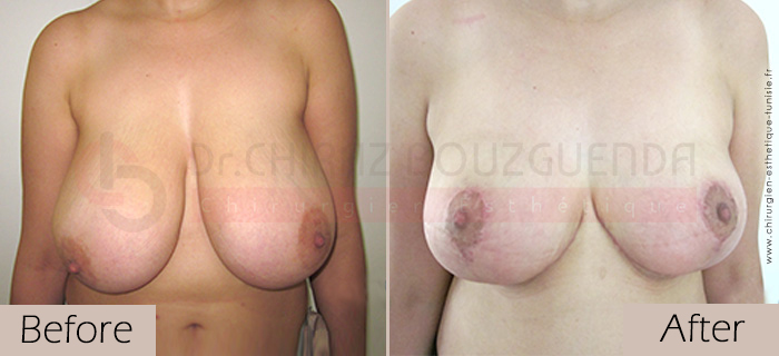 Breast-reduction-before-after-abroad-tunisia-patient6