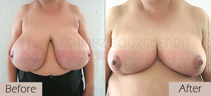 Breast-reduction-before-after-abroad-tunisia-patient8