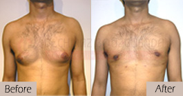 Gynecomastia-before-after-face-abroad-tunisia-patient1