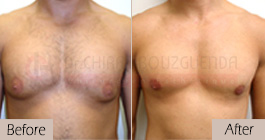 Gynecomastia-before-after-face-abroad-tunisia-patient2