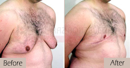 Gynecomastia-before-after-face-abroad-tunisia-patient3