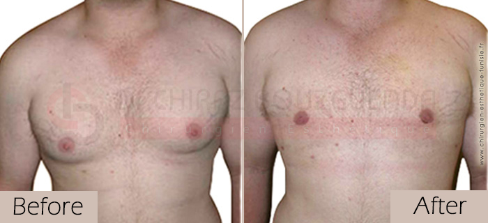 Gynecomastia-before-after-face-abroad-tunisia-patient4
