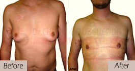 Gynecomastia-before-after-face-abroad-tunisia-patient5