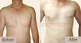 Gynecomastia-before-after-face-abroad-tunisia-patient6