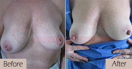 Inverted-nipples-face-large-abroad-tunisia-patient1