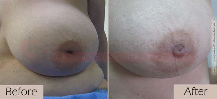 Inverted-nipples-face-large-abroad-tunisia-patient3