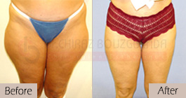 Liposuction-before-after-abroad-tunisia-patient10