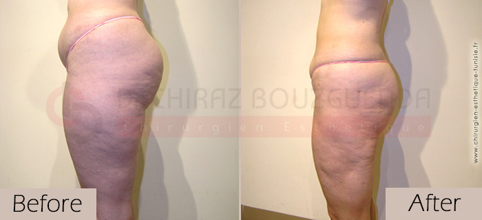 Liposuction-before-after-abroad-tunisia-patient11