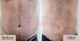 Liposuction-before-after-abroad-tunisia-patient12