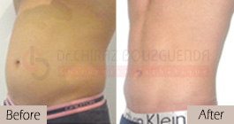 Liposuction-before-after-abroad-tunisia-patient13