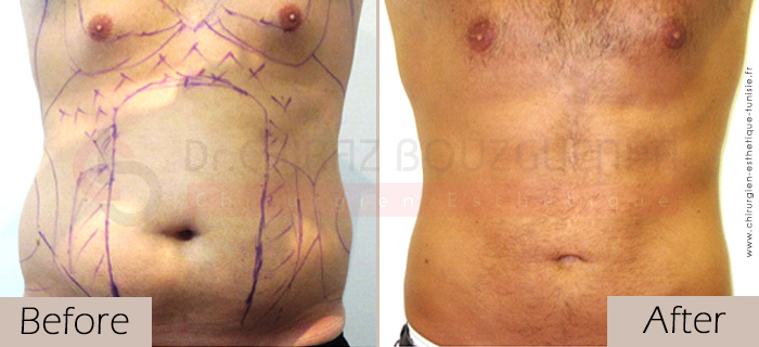 Liposuction-before-after-abroad-tunisia-patient14