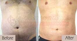 Liposuction-before-after-abroad-tunisia-patient15