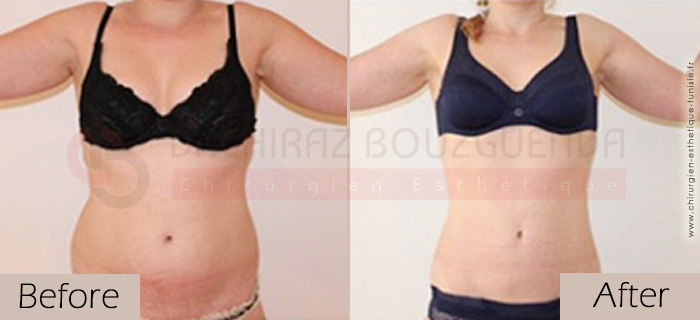Liposuction-before-after-abroad-tunisia-patient2