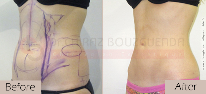 Liposuction-before-after-abroad-tunisia-patient3