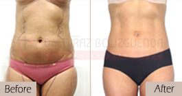 Liposuction-before-after-abroad-tunisia-patient4