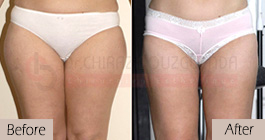 Liposuction-before-after-abroad-tunisia-patient6