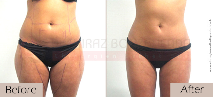 Liposuction-before-after-abroad-tunisia-patient7