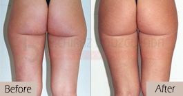 Liposuction-before-after-abroad-tunisia-patient9