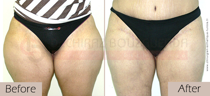 Thigh-lift -before-after-abroad-tunisia-patient1