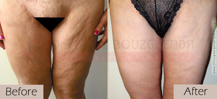 Thigh-lift -before-after-abroad-tunisia-patient2