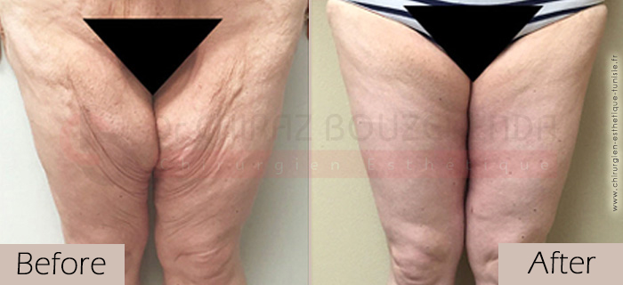 Thigh-lift -before-after-abroad-tunisia-patient3