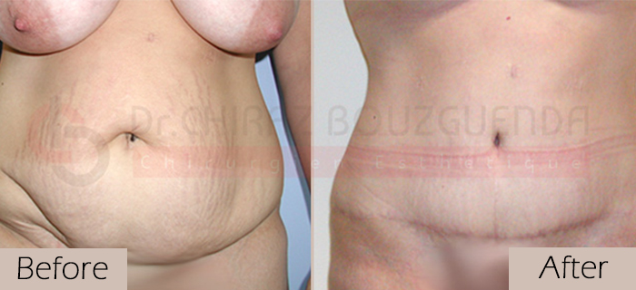 Tummy-tuck-before-after-abroad-tunisia-patient1