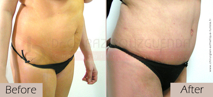 Tummy-tuck-before-after-abroad-tunisia-patient3