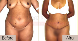 Tummy-tuck-before-after-abroad-tunisia-patient4